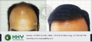 HHY Hair Transplant Clinic Offer Free Hair Consultation Worth 1500 INR