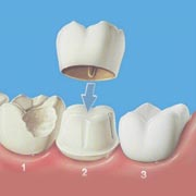 Root Canal Treatment In Pimple Saudagar Pune