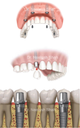 Dental Implants in Navi Mumbai | Tooth Implant Cost - Smile Evolve