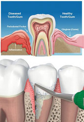 Periodontal Surgery | Gum Treatment in Navi Mumbai - Smile Evolve