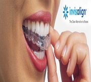 Get Invisalign Treatments Through Invisible Braces in Mumbai