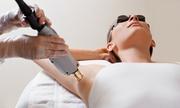Laser Hair Removal Mumbai | Permanent Laser Hair Removal