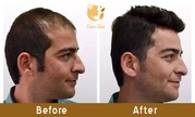 Hair transplant clinic in Andheri